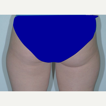 25-34 year old woman treated with Liposuction before 3346065