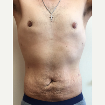 25-34 year old man treated with Smart Lipo after 3370525