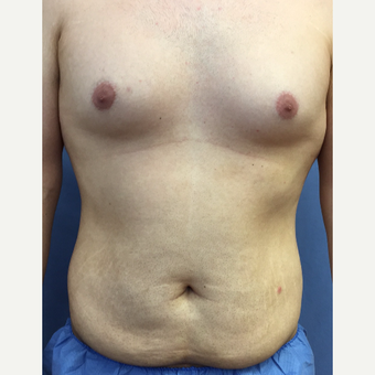 25-34 year old man treated with Smart Lipo before 3370525