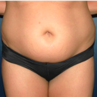 30 year old woman treated with Liposuction before 3721064