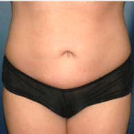 30 year old woman treated with Liposuction after 3721064