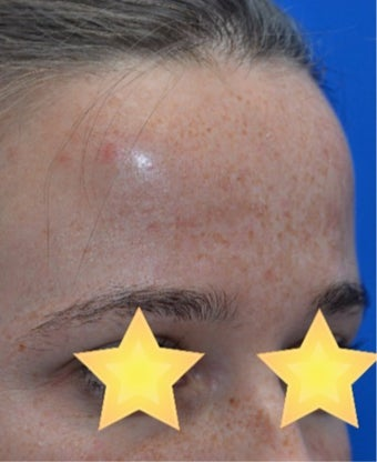 25-34 year old woman treated with Laser Treatment before 3141088