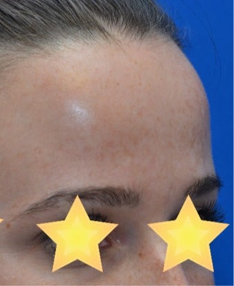 25-34 year old woman treated with Laser Treatment after 3141088