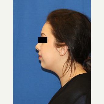 18-24 year old woman treated with Buccal Fat Removal before 3684754