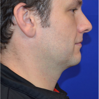 35-44 year old man treated with Kybella before 2854764