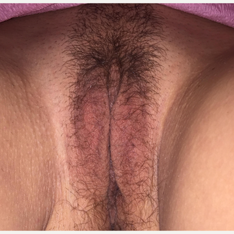 25-34 year old woman treated with Labiaplasty after 3776951