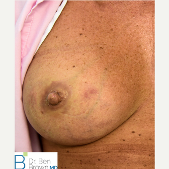 Inverted nipple treatment after 3486913