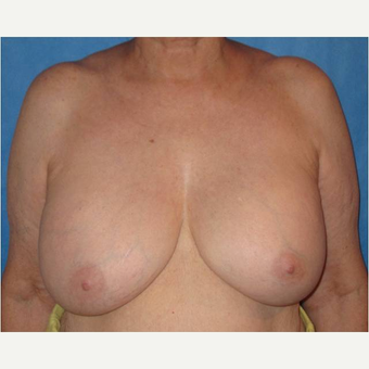 65-74 year old woman treated with Breast Implant Removal before 3738950