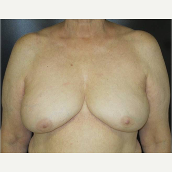 65-74 year old woman treated with Breast Implant Removal after 3738950