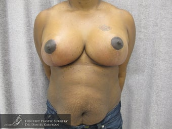 33 Year Old Female - Breast Reduction Procedure after 686321