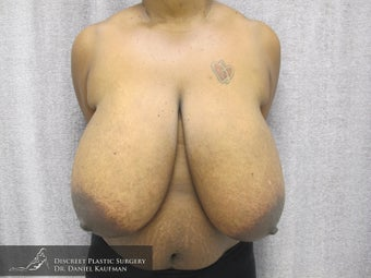 33 Year Old Female - Breast Reduction Procedure before 686321