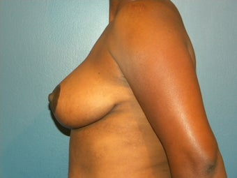 32DDD with back, neck and shoulder pain 1067320