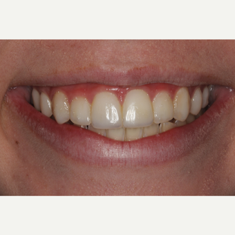 18-24 year old woman treated with Dental Bonding after 3345598