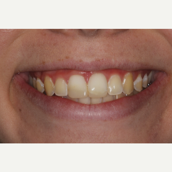 18-24 year old woman treated with Dental Bonding before 3345598