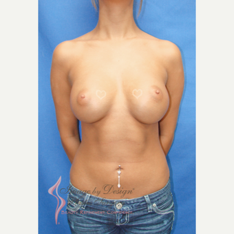 18-24 year old woman treated with Breast Augmentation after 3090670