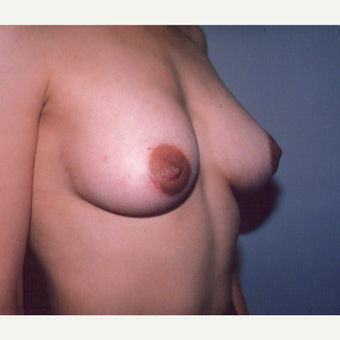 25-34 year old woman treated with Breast Implants after 3538736