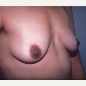 25-34 year old woman treated with Breast Implants before 3538736