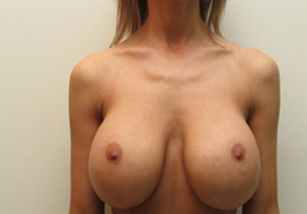 25-34 year old woman treated with Breast Implant Removal before 1946291