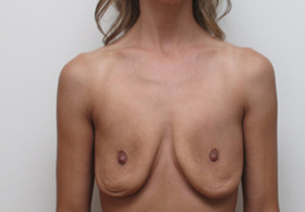 25-34 year old woman treated with Breast Implant Removal after 1946291
