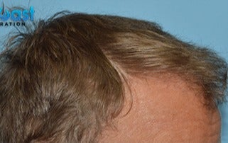 45-54 year old man treated with Hair Transplant after 3141773