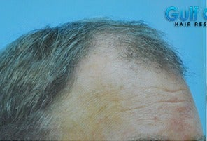 45-54 year old man treated with Hair Transplant before 3141773
