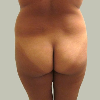 Brazilian Butt Lift with Liposuction before 1340261