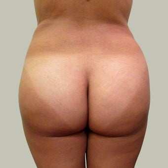 Brazilian Butt Lift with Liposuction after 1340261