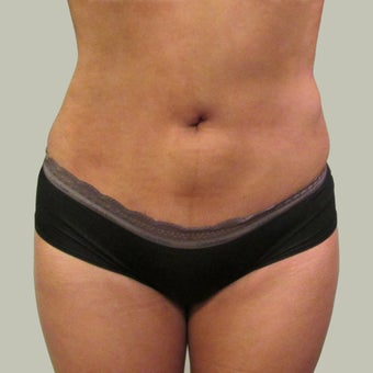 Brazilian Butt Lift with Liposuction 1340261