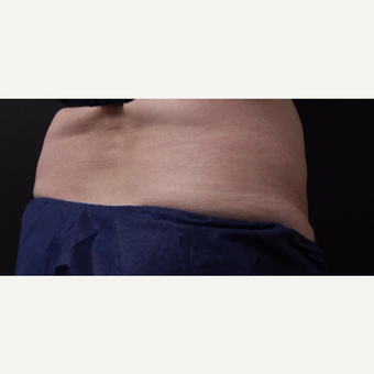 59 year old woman treated with CoolSculpting before 3384619