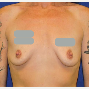 35-44 year old woman treated with Breast Augmentation before 3747427
