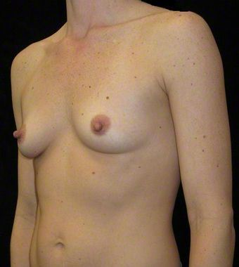 35 year old woman treated with Breast Augmentation 3103640