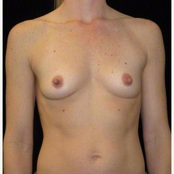 35 year old woman treated with Breast Augmentation before 3103640