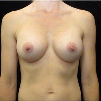 35 year old woman treated with Breast Augmentation after 3103640