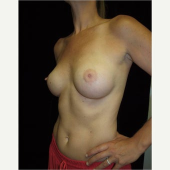 35-44 year old woman treated with Breast Augmentation after 2562193