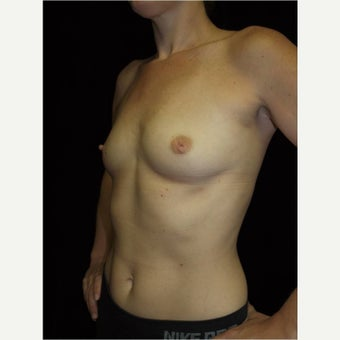 35-44 year old woman treated with Breast Augmentation before 2562193