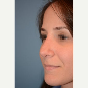 18-24 year old woman treated with Rhinoplasty & Sinus Surgery for a Deviated Septum after 2172197