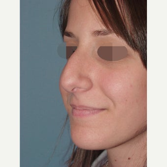 18-24 year old woman treated with Rhinoplasty & Sinus Surgery for a Deviated Septum before 2172197