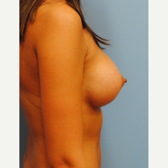 23 year old woman treated with Breast Augmentation, 350 cc HP going from A to full C cup after 3219969