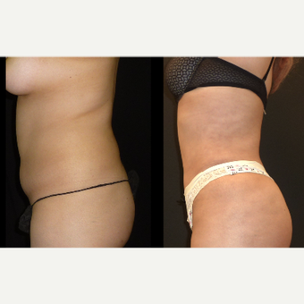 18-24 year old woman treated with Liposuction before 3717676