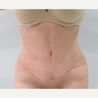 45-54 year old woman treated with Tummy Tuck after 3696062