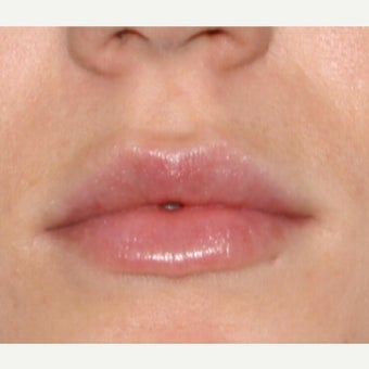 Woman treated with Juvederm for the Lips after 1602467