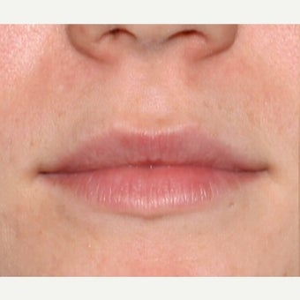 Woman treated with Juvederm for the Lips before 1602467