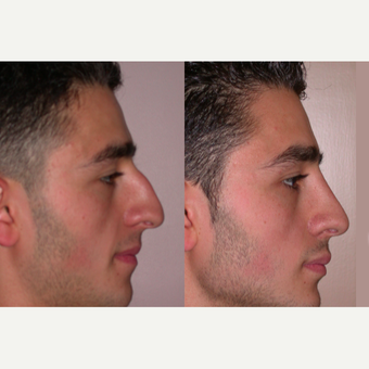 25-34 year old man treated with Rhinoplasty before 3521583