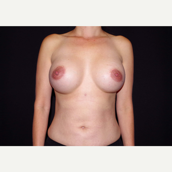 35-44 year old woman treated with Breast Implants after 3439957