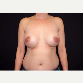 35-44 year old woman treated with Breast Implants before 3439957