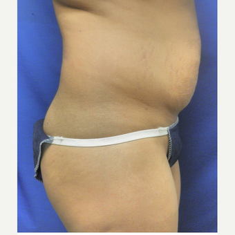 25-34 year old woman treated with Liposuction before 3071324