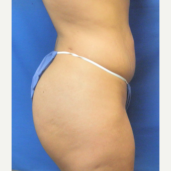 25-34 year old woman treated with Liposuction after 3071324