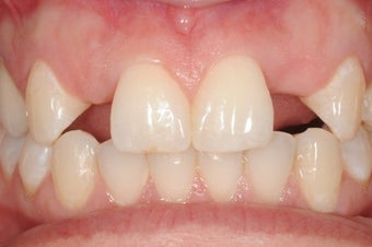 Patient with missing upper lateral incisors replaced with dental implants