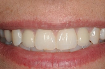 Patient with missing upper lateral incisors replaced with dental implants after 1441443