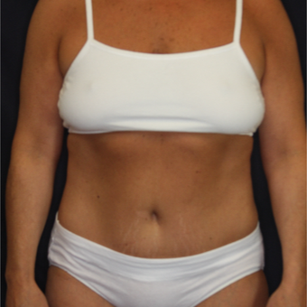 45-54 year old woman treated with Tummy Tuck after 3075277